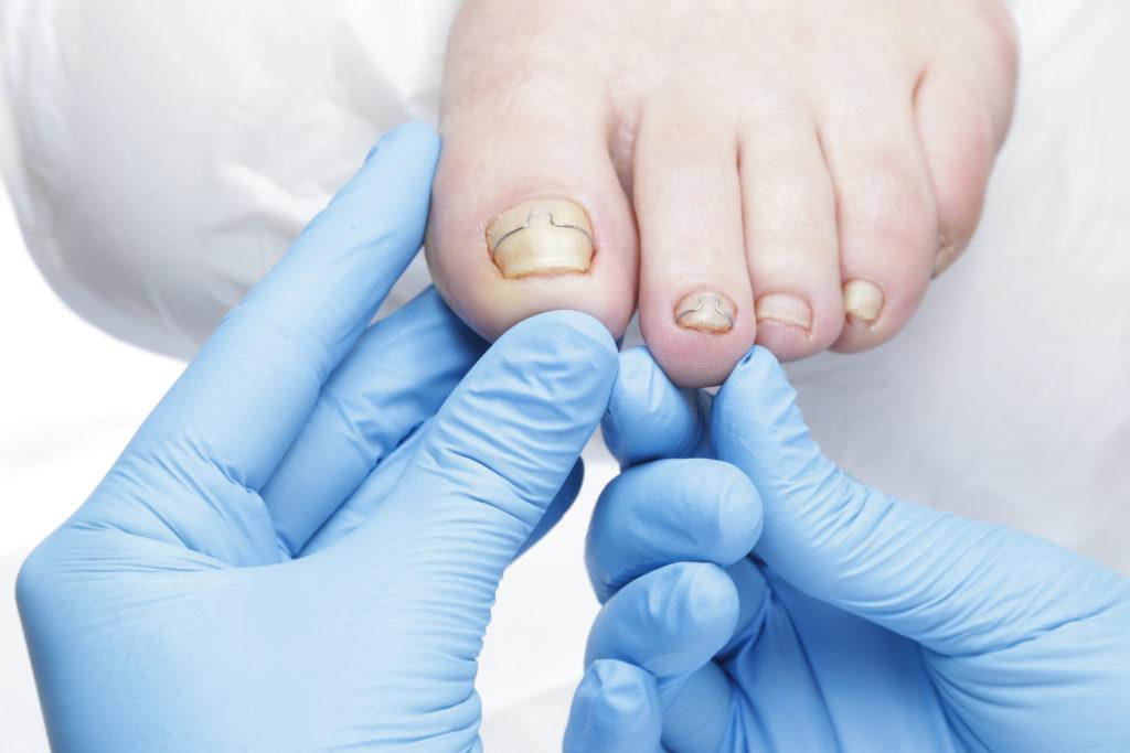 korekta wrastających paznokci – klamry