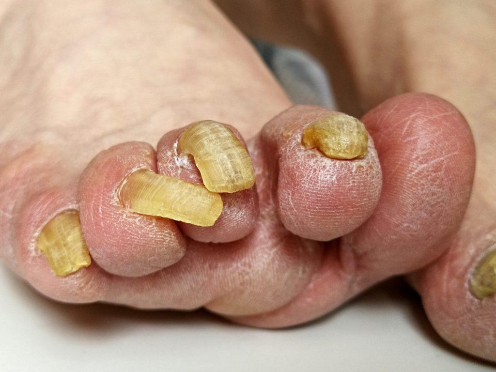 paznokcie zrogowaciałe
